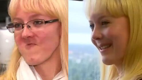 3D打印竟然能打印骨头?全球首例上颚再造术帮毁容姑娘重获真容!