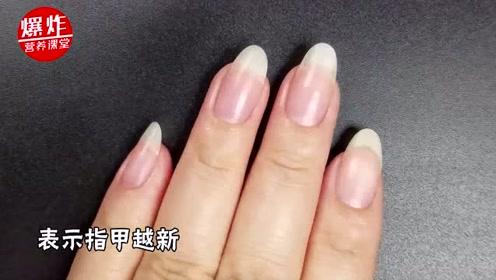 指甲上的月牙越多越健康吗?关于指甲的真相,太多人没弄明白