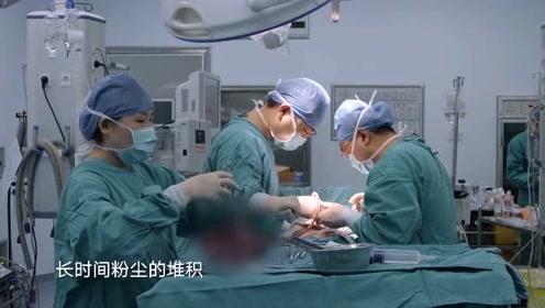病人由于长时间的肺沉积,光滑的肺硬的像石头