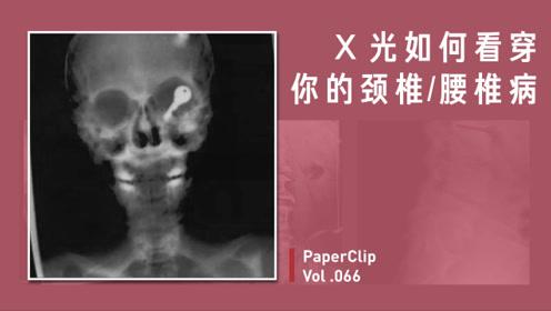 Vol.066 X光如何看穿你的颈椎、腰椎病?