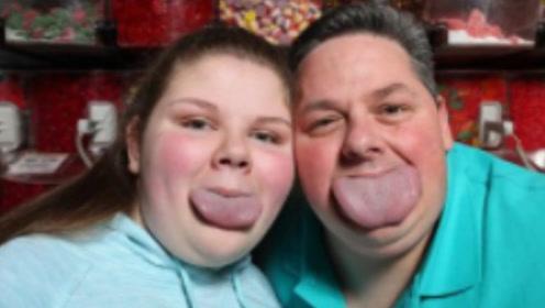 美国男子拥有全世界最宽的舌头, 宽度超过8.6厘米!