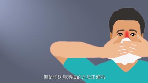 你真的会擤鼻涕吗?中医专家说,百分之五十的人都做错了!