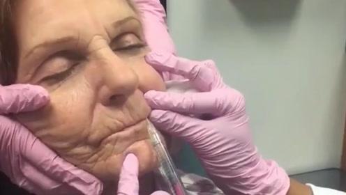 玻尿酸到底多可怕?80岁老奶奶亲自尝试,2分钟后像换了个人!