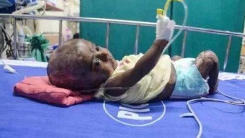 """印度男婴自带""""火种"""",3个月自燃4次,皮肤烧焦还能活!"""