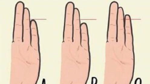 拿无名指和小指对比,可以看出人的性格?第2种人最理性,那你呢