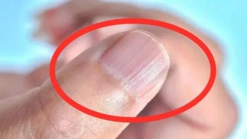 指甲长出奇怪的竖条纹,是身体在传达什么信息