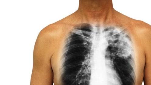 肺癌发出的第一个信号,经常是这种症状,长期吸烟的人要及时检查