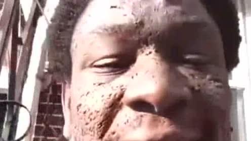 여드름 함부로 짠게 얼굴이.ㄷ…