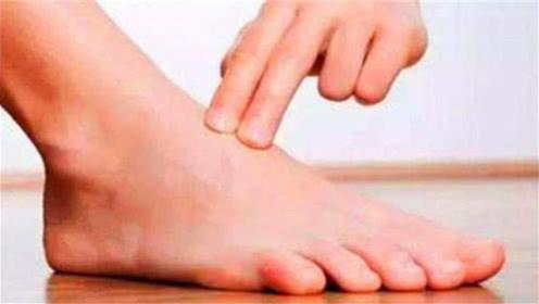 """脚趾出现3大症状,可能是""""癌细胞""""来了,别再当脚气了!"""