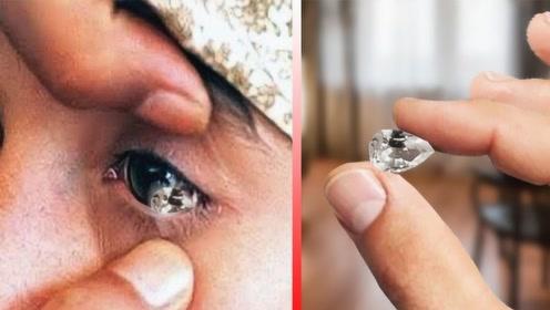 """印度女孩患怪病,眼里会不断流出""""钻石"""",网友:看着都疼!"""