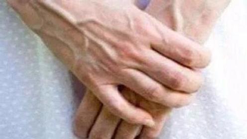 为什么有些人,手上的青筋比一般人明显?看完后背一凉!