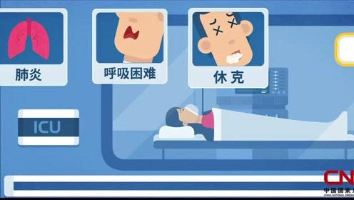 每年约65万人因它而死,如何应对来势汹汹的流感?