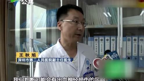 """深圳:面部反复流脓 竟是因为""""长了""""树枝"""