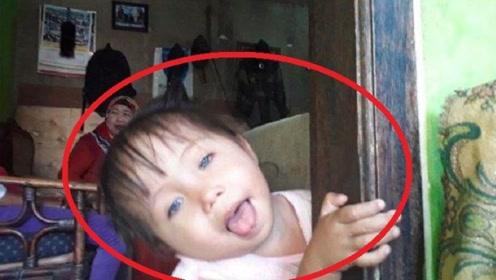 2岁女童患罕见病症,眼球天生能变色,医生检查称并无大碍