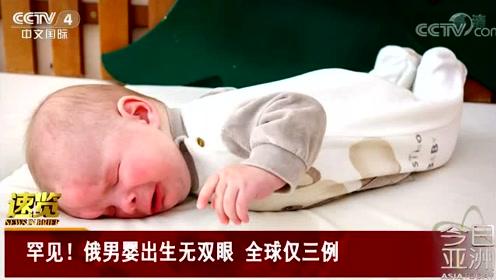 罕见!俄男婴出生无双眼 全球仅三例