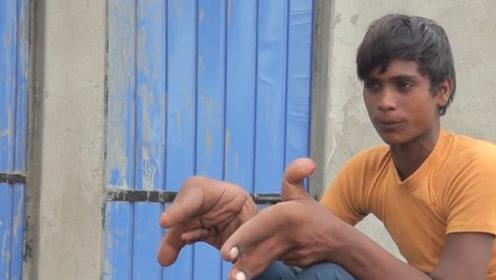 """印度小伙患""""怪病"""",被父母嫌弃后离开家乡,如今生活都成了问题"""