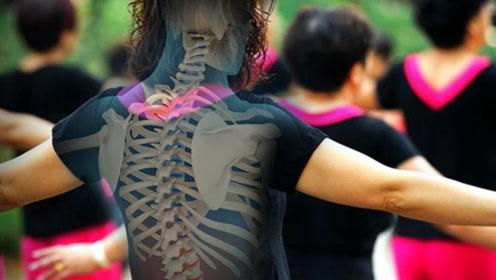 变矮、弯腰驼背?有这些症状要警惕骨质疏松