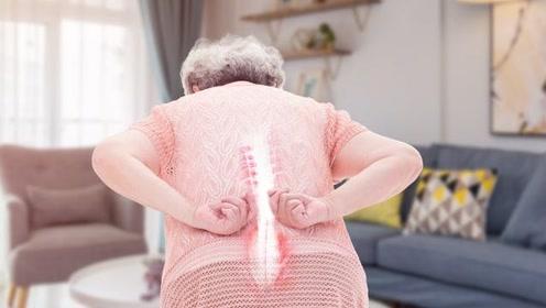 腰椎管狭窄症的3大表现,老年人要多警惕,腰痛可能预示多种疾病