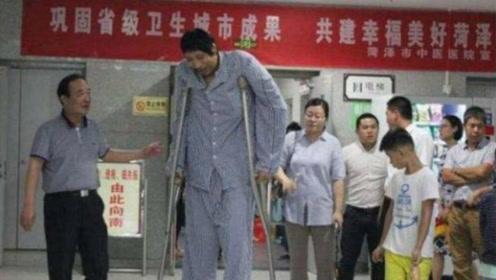 五十老汉突然变成巨人,身高两米头巨大!专家:生长激素过多
