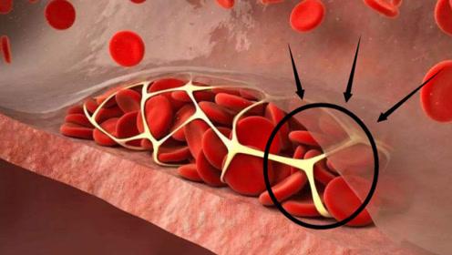 """权威医生:血管的""""清道夫""""找到了,每天多吃点,血栓不来打扰!"""
