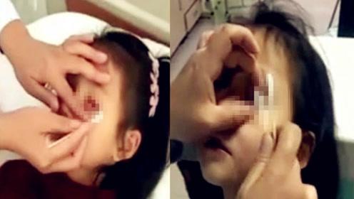 实拍:河南7岁小学女生眼睛冒出数十张纸片 校长:小孩玩耍无恶意