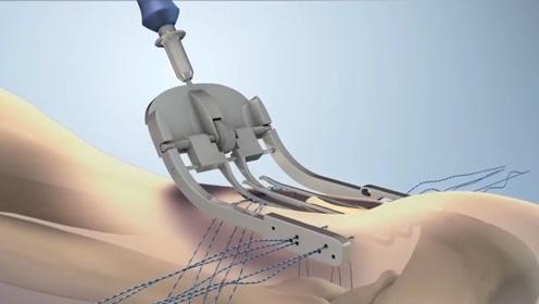 92秒带你了解韧带修复方法,3D模拟修复全过程,隔着屏幕都感觉疼
