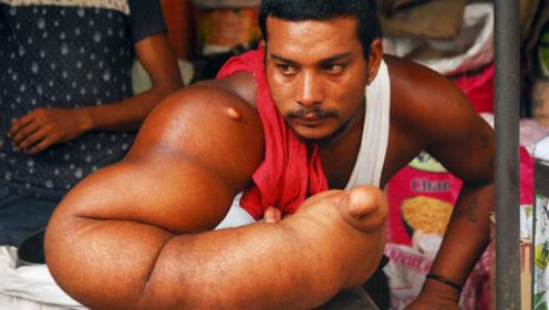 印度男子患罕见疾病,右臂重达20公斤,被称为恶魔之子,赶出家乡