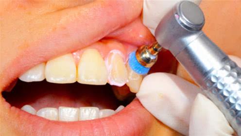 """""""洗牙""""到底对牙齿好不好?3D动画模拟全过程,看完不寒而栗!"""