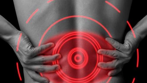 肾脏是人体的净水工厂,医生:真正的护肾方法有3个原则,要坚持