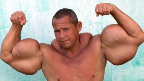 比巨臂哥还夸张!男子手臂粗达74厘米,里面不是肌肉是煤油