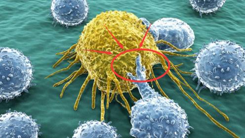 """专家:患癌的""""致命""""因素,不是吃与喝,而是你每天都会""""接触""""的!"""