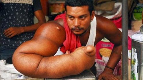 """印度男子有着真正的""""麒麟臂"""",被称为""""魔鬼之子"""",被赶出家乡"""