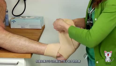 骨折是怎么修复的?3D演示接骨手术,隔着屏幕都觉得疼!