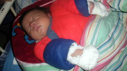 只因爸爸一个动作,1岁宝宝骨折险些残疾!送医院医生吓出冷汗!