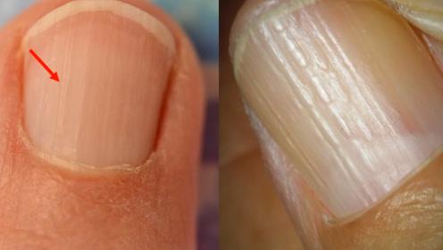 指甲上有竖纹,到底是身体哪里出了问题?看完要留意了!