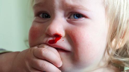 流鼻血怎么及时止血 常见方法却害娃不浅