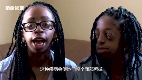 年轻姐妹花竟患怪异疾病!5个世界上的奇闻异事!