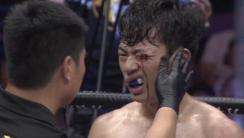 惨!韩国选手在中国小侯爷面前吹牛挑衅,结果脸被打烂血溅解说席