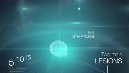 新研究:阿兹海默症基因儿时就会对人产生影响,患者智商偏低