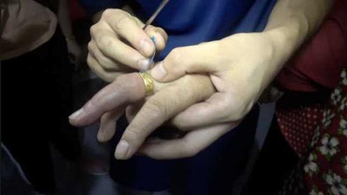消防蜀黍都笑了!戒指卡手指老太来求助:要收多少钱