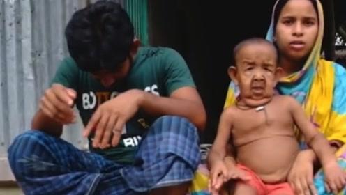 印度刚出生的婴儿,长相却像80岁老头,父母的做法让人寒心