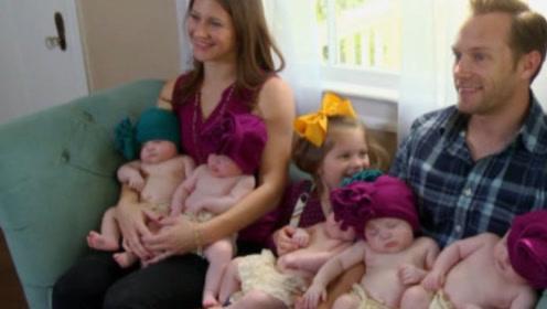 """女子以为怀的双胞胎,分娩时却发现,创造500年一次的""""奇迹"""""""