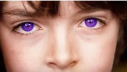 世界最罕见的眼睛,仅600人拥有,其中一双价值700万元