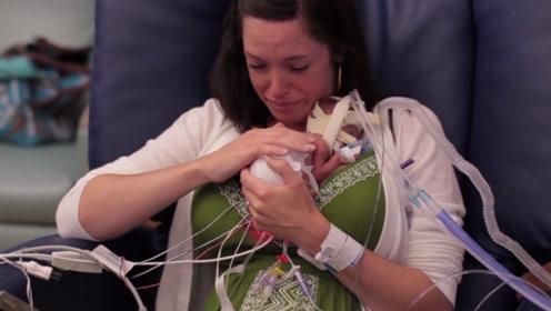 五个月就出生的早产儿,却奇迹般的活了下来,看过的人都不敢相信
