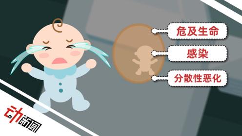 """男婴出生4天被""""剖腹产子"""" 3D解读啥是""""寄生胎""""?"""