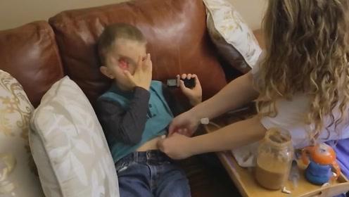 马赛克男孩脸部被毁,眼睛被赘生物阻挡失明,进过5次鬼门关!