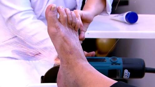 史上最夸张按摩师,居然用打磨机磨脚,顾客看见了毛骨悚然