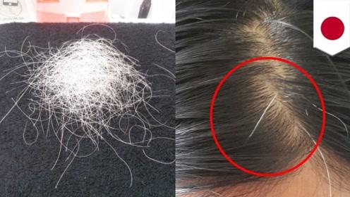 日本推出拔白头发的项目,30分钟收费238元,成功吸粉了