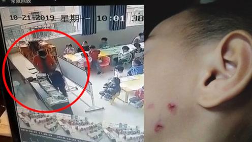 气愤!幼儿园孩子脸上带伤 家长调取监控后怒了:老师怎么下得了手