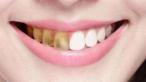 """牙齿上难闻的""""黄泥""""别再抠了,教你一个小方法,牙垢自动掉下来"""